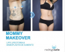 mommy makeover que incluye