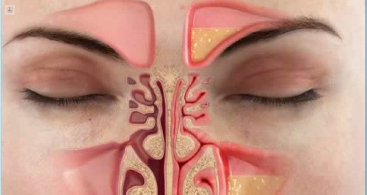causas de la sinusitis